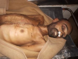 EXPOSED: Pakistan Army Doing Organ Harvesting after Enforced Disappearance of Ethnic Baloch, Pashtuns and Muhajirs