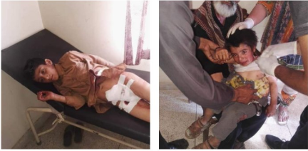 Pictures of Pakistan Occupied Kashmir victims of Pakistan using Cluster Bombs