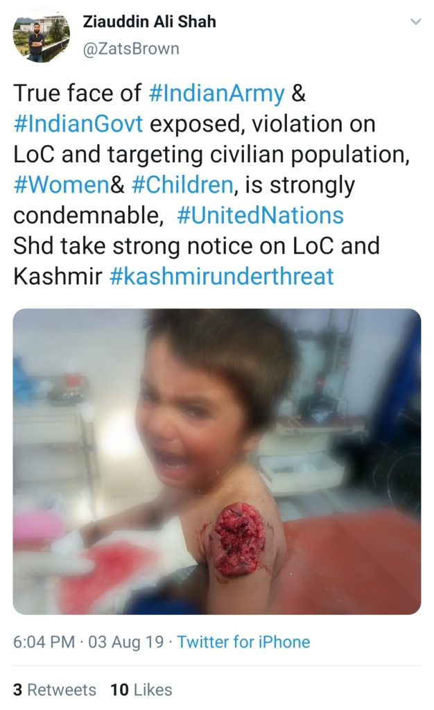 Pakistan Economy is in Shambles. Trolls are paid for Propaganda. One such Troll on Twitter sharing the picture of a boy injured with Artillery Shrapnel to in Fake Propaganda