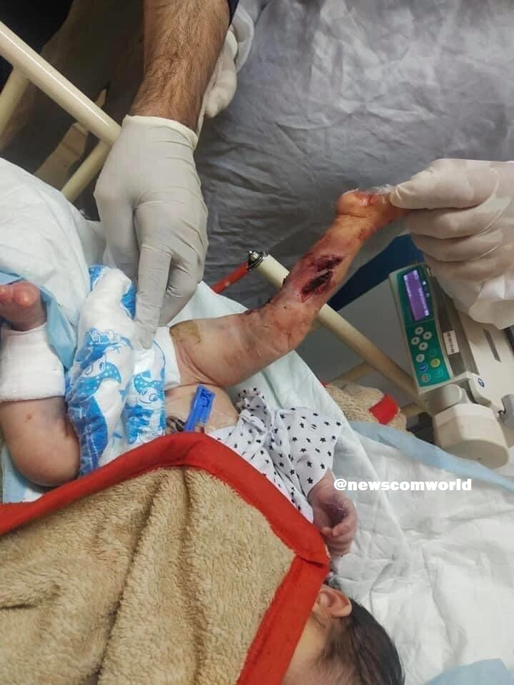 New Born Babies injured by the Pakistan Supported Taliban Terrorists in an attack on 100-bed Maternity Hospital in Kabul
