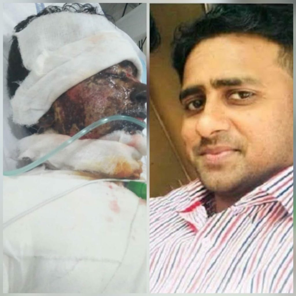 15-September 2018, A Christian manager of a local hospital in Lahore was killed after being targeted in an acid attack