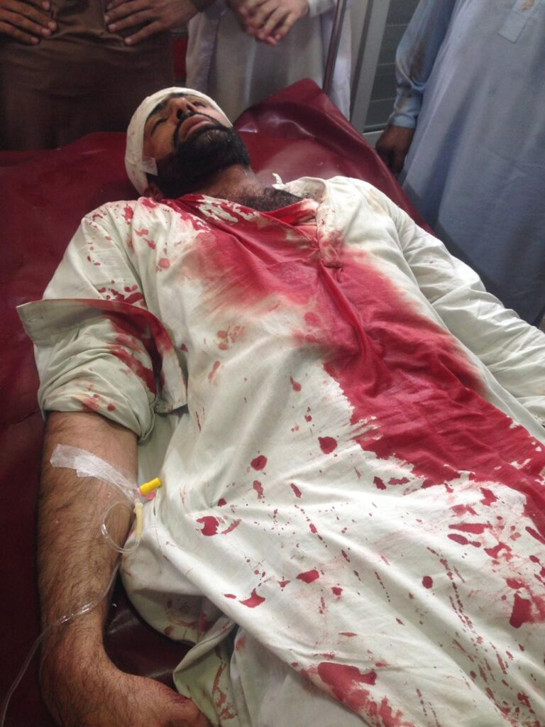 One of the Injured Doctors in Pakistan's Khyber Police Baton charge went to Coma.